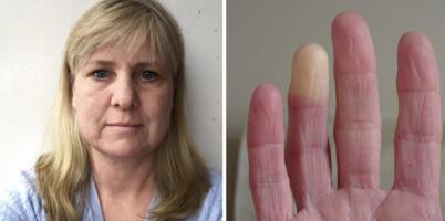 Image: Omtrent 200 000 nordmenn har «likfingre» - Trine (49) er hardt rammet