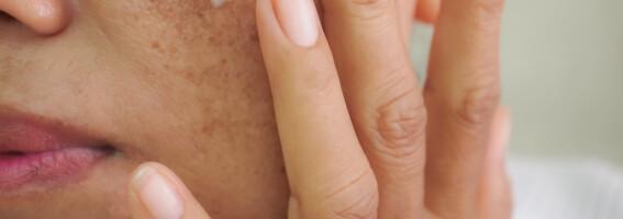 Image: Sliter du med pigmentflekker?
