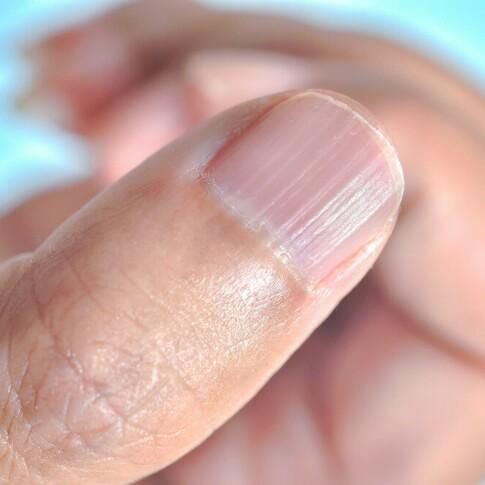Image: Har du disse stripene på neglene dine?