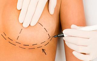 Image: Dette skal til for å få brystoperasjon dekket av staten