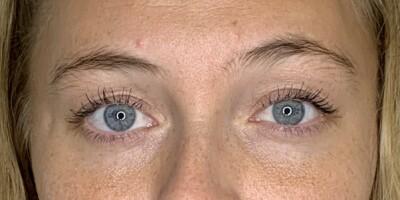 Image: Slik så øyenbrynene ut før it-behandlingen
