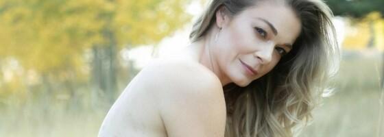 Image: Popstjerna la ut nakenbilder av hudsykdommen - nå hylles hun!