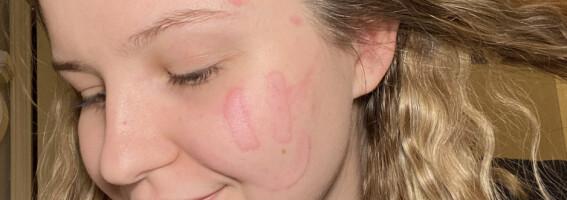 Image: Dette skjer når Sarah tar på huden sin