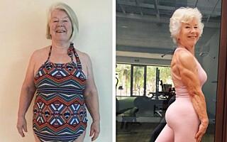 Image: - Hvordan klarte jeg å gå med 28 ekstra kilo på kroppen?
