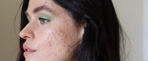 Image: - Jeg kjente sterk avsky mot meg selv og huden min