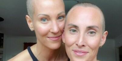 Image: Da kreftsyke Elin barberte vekk håret - gjorde tvillingsøsteren det samme