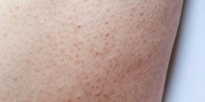 Image: Slik blir du kvitt nupper i huden